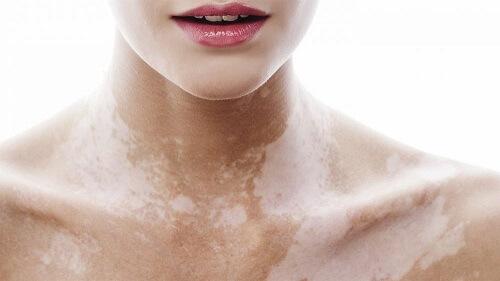 Белые пигментные пятна на теле: причины и лечение