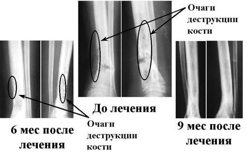 Гематогенный остеомиелит: острый и хронический, у взрослых