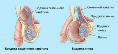 Гидроцеле яичка: лечение без операции, что это такое