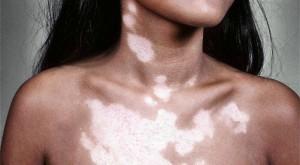 Белые пятна на коже: как называется болезнь, причины