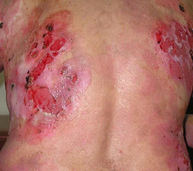 Вульгарная пузырчатка: лечение, анализы, причины, симптомы