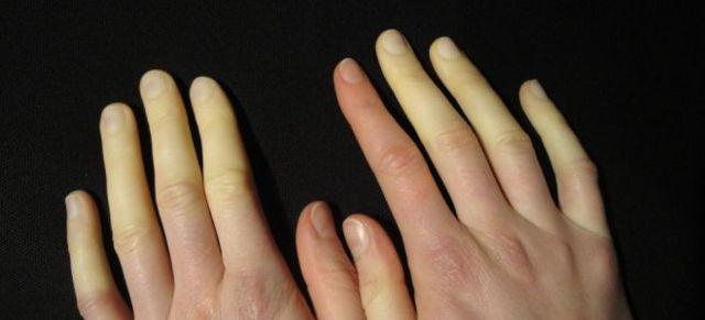 Болезнь Рейно у женщин: симптомы, лечение, признаки