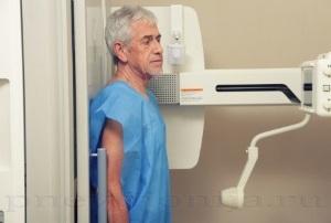 Вода в легких: причины и последствия, жидкость, у пожилых