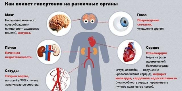 Артериальная гипертензия 3 степени: риск 4, что это такое, стадии