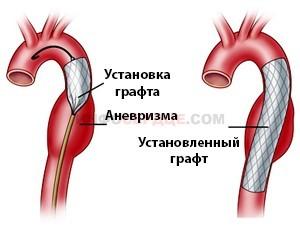 Аневризма аорты брюшной полости: симптомы, разрыв