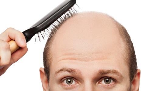 Волосы выпадают пучками: что делать, причины, лезут