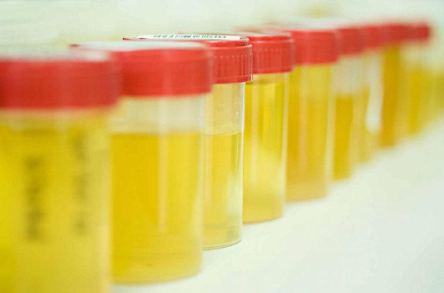 Геморрагическая лихорадка с почечным синдромом: диета при ГЛПС