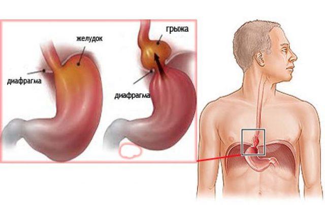 Грыжа пищеводного отверстия диафрагмы: симптомы, лечение