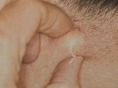 Атерома: лечение без операции, в домашних условиях, как удалить