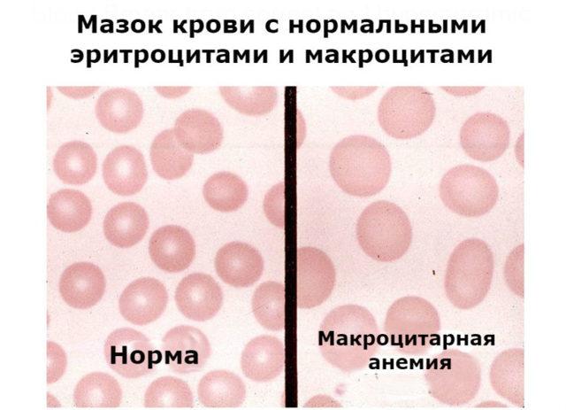 Гиперхромная анемия: макроцитарная, что это такое, причины
