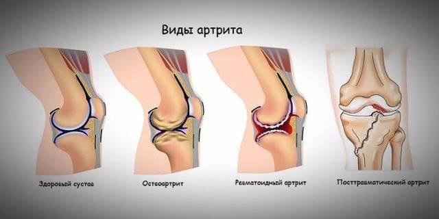 Артрит суставов стопы: лечение в домашних условиях