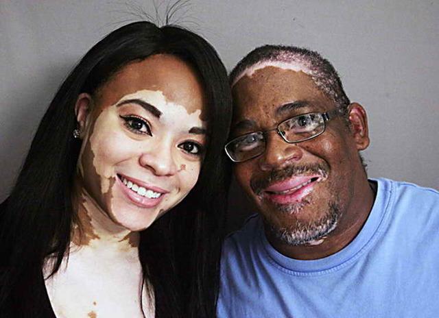 Белые пятна на лице: после загара, появились, как убрать