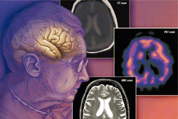 Болезнь Гентингтона: генетические причины, лечение
