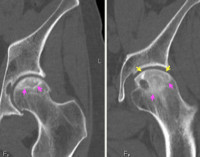 Асептический некроз головки бедренной кости: лечение без операции