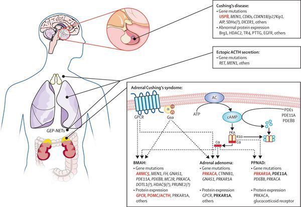 Болезнь Иценко Кушинга: диагностика, симптомы, лечение