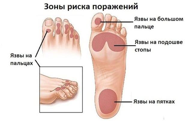 Диабетическая полинейропатия нижних конечностей: лечение, препараты