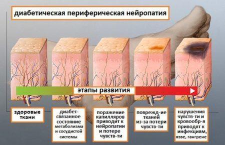 Диабетическая нейропатия нижних конечностей: как лечить, лечение