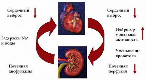 Асцит при циррозе печени: сколько живут, продолжительность жизни