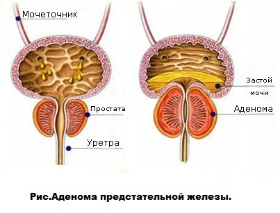Аденома предстательной железы: симптомы и лечение в домашних условиях