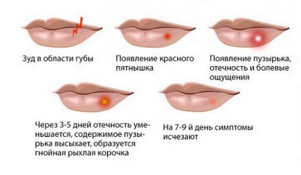 Белые пятна на губах: внутренней стороне, внутри
