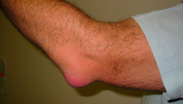 Бурсит локтевого сустава: симптомы и лечение, признаки