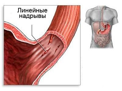 Внутреннее кровотечение желудочно кишечного тракта: симптомы