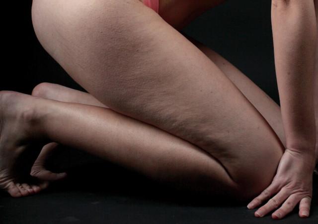 Дряблая кожа на бедрах и ягодицах: что делать, как подтянуть