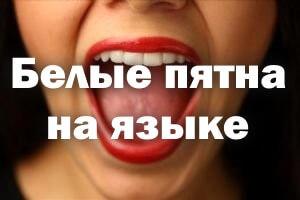 Белые пятна на языке: у взрослого, сбоку, кончике