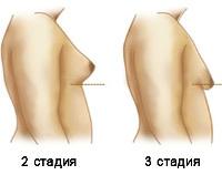 Гинекомастия у женщин: симптомы, что это такое