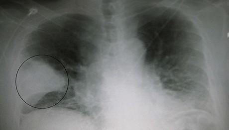 Бактериальная пневмония: симптомы и лечение, неуточненная