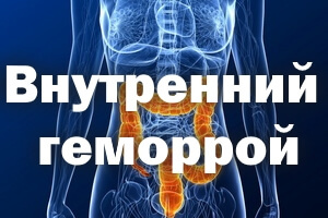 Внутренний геморрой: симптомы, у женщин, как лечить, лечение