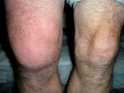 Бурсит коленного сустава: симптомы и лечение, гнойный, причины