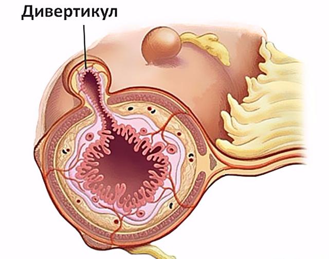 Дивертикул Меккеля: воспаление, локализуется, резекция