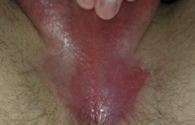 Грибок в паху у мужчин: чем лечить, мазь, лечение