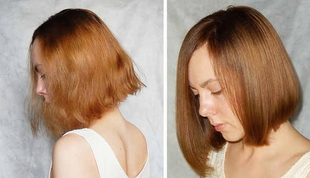 Волосы выпадают и стали очень тонкие: что делать, почему