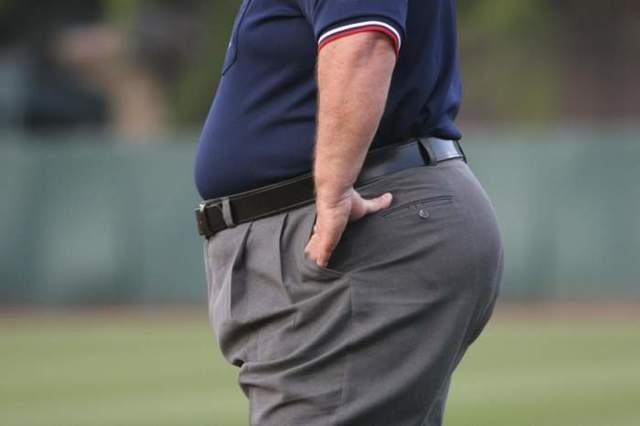 Абдоминальное ожирение: у мужчин, женщин, лечение