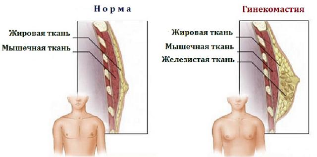Гинекомастия у мужчин: лечение без операции, как лечить, вылечить