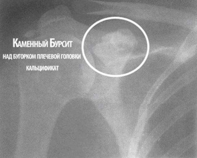 Бурсит плечевого сустава: симптомы и лечение, причины