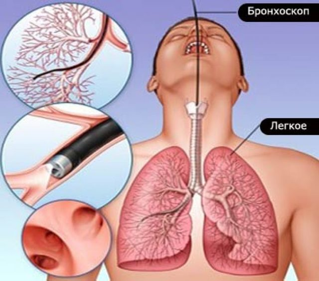Бронхоскопия легких: как делают, с биопсией, диагностическая