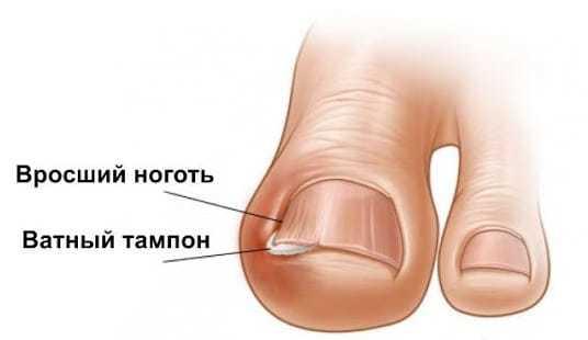 Вросший ноготь на ноге: как лечить, вылечить, избавиться