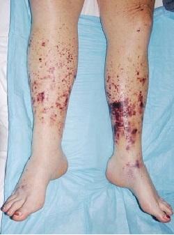 ДВС-синдром: клинические рекомендации