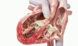 Внебольничная пневмония: клинические рекомендации, лечение