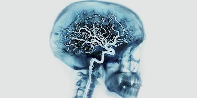 Ангиография сосудов головного мозга: как проводится