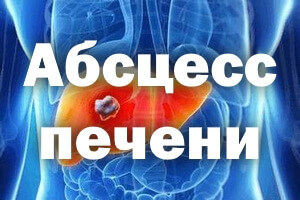 Абсцесс печени: причины и симптомы, лечение, признаки