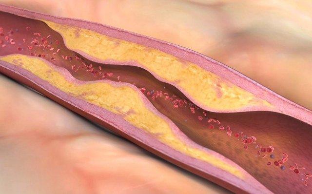 Артериальная гипертензия 1 степени: риски осложнений и симптомы
