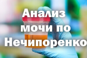 Анализ мочи по Нечипоренко: расшифровка анализа, норма, что показывает