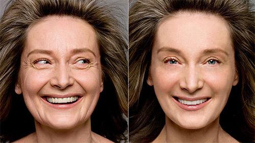 Дряблая кожа лица: что делать, в 30 лет, как подтянуть
