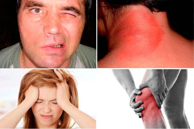 Боррелиоз: симптомы и последствия, лечение, клещевого, у взрослых