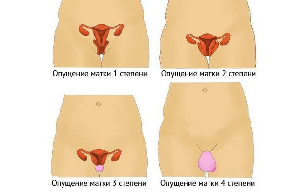 Гимнастика Кегеля при опущении матки: упражнения, симптомы