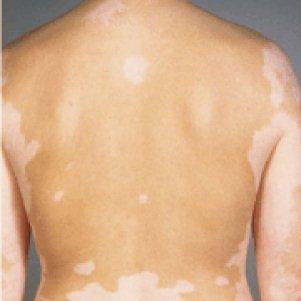 Белые пятна на спине: что это и как лечить, после загара